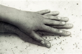Artwork by Peter Peryer, Thea's Hand, Made of gelatin silver print